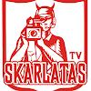 skarlataTV