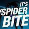 WebofSpiderBite
