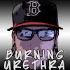 BurningUrethra