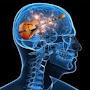 Neuroguitarist