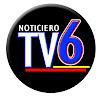 Tv6 Ixtapan de la Sal