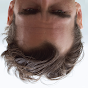 Joaquin Forehead