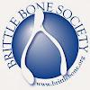 Brittle Bone UK