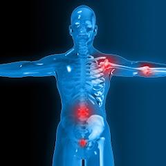 Pathologies - Traumatologie 3D