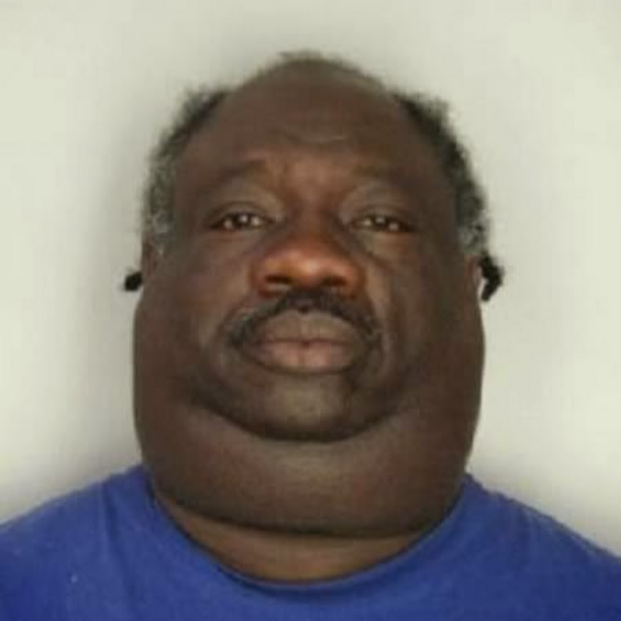 black guy who gotta fat huge neck youtube