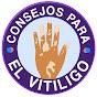 Consejos Para El Vitiligo