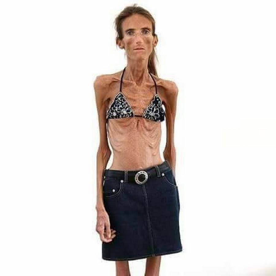 Картинки самой худой женщины