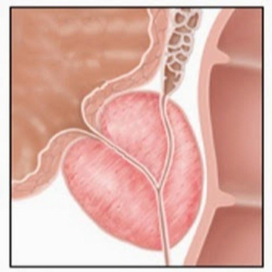 Лучшее лечение небактериального простатита лечу простатит с 17 лет