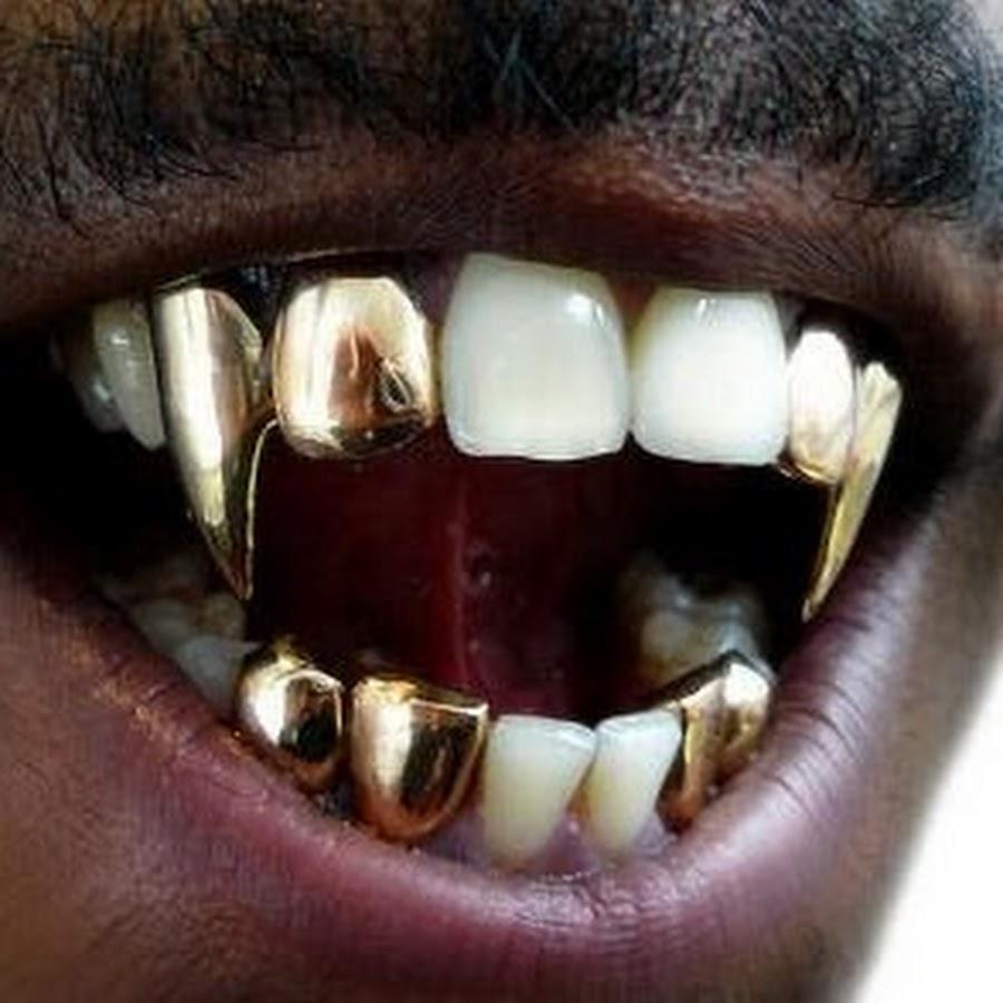 фото зубы во весь рот это был