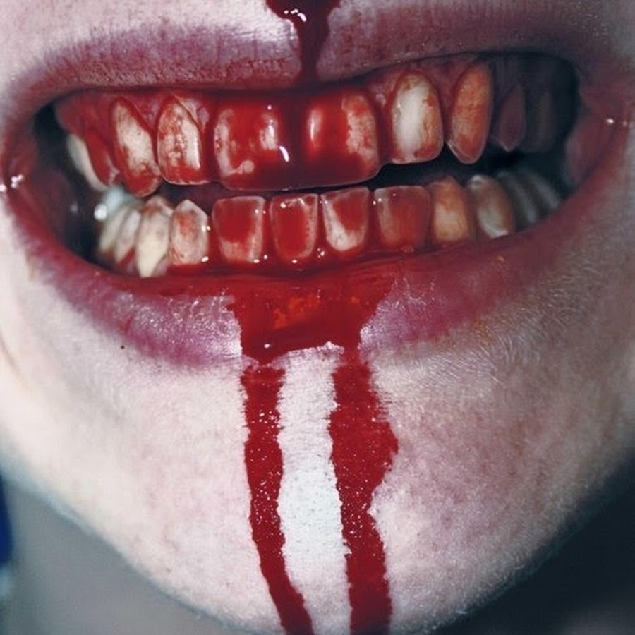 Зубы в крови картинки