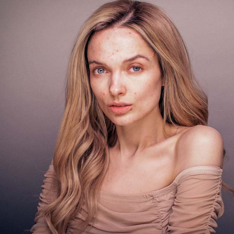 My Pale Skin Photo