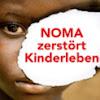 NOMA-HILFE- SCHWEIZ