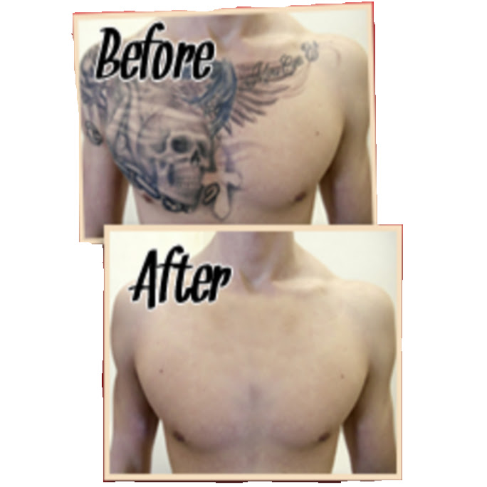 Laserless tattoo removal guide - Dorian Davis