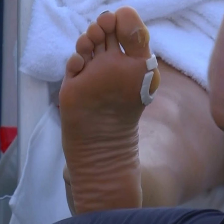 video bysption feet în varicoză
